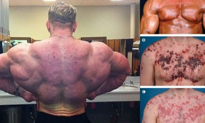 worst-side-effects-of-steroids-400×240